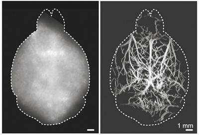 无创荧光显微技术能为大脑深度成像